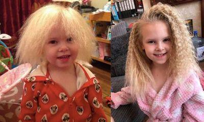 Mắc hội chứng hiếm gặp, bé gái người Anh sở hữu mái tóc y hệt thiên tài Vật lý Einstein