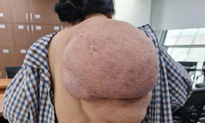 Người phụ nữ đeo khối u khổng lồ trên lưng trong suốt 30 năm