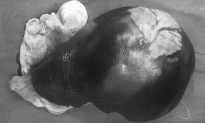 Tin tức đời sống ngày 30/1: Bé gái 13 tuổi có khối u chiếm trọn ổ bụng