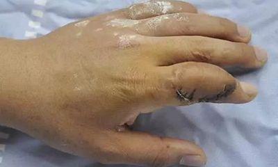 Người phụ nữ mới 29 tuổi đã bị gout, tưởng là lạ nhưng lại thường xảy ra với 4 trường hợp này