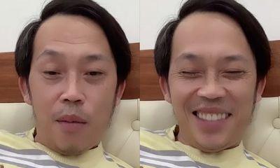 NSƯT Hoài Linh bất ngờ livestream giữa đêm khuya với gương mặt khác lạ, phủ nhận bị