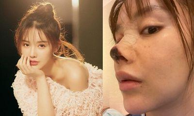 Sao nữ xinh đẹp phải đền tiền tỉ vì không thể đóng phim do mũi bị hoại tử sau phẫu thuật