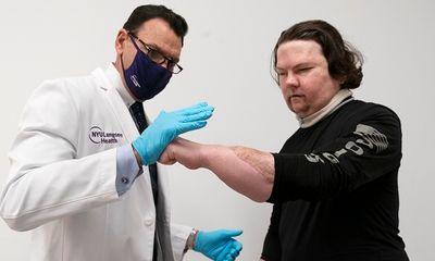 Mỹ thực hiện thành công ca ghép mặt và tay kết hợp đầu tiên trên thế giới