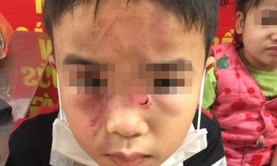 Điều tra vụ bé trai 7 tuổi bị bố đánh bầm tím khắp người