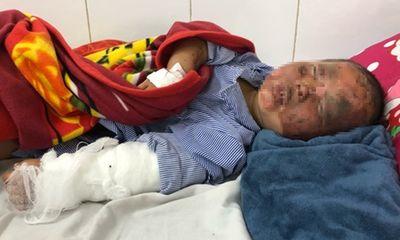 Tin tức đời sống ngày 12/2: Bé 3 tuổi bị bỏng nặng do pháo tự chế phát nổ