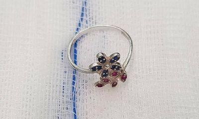 Tin tức đời sống ngày 16/2: Gắp chiếc nhẫn khỏi thực quản bé gái 10 tuổi
