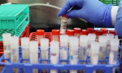Phát hiện biến chủng virus SARS-CoV-2 mới có khả năng kháng miễn dịch