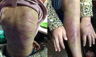 Vụ bé gái ở Hà Đông nghi bị bạo hành, xâm hại tình dục: UBND Hà Nội ra văn bản hỏa tốc