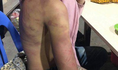 Bác ruột bé gái bị bạo hành, xâm hại: Tùng từng thề với gia đình là không làm chuyện ác