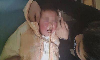 Bé 2 tuổi bị que tre đâm xuyên mũi khi đang ăn món quen thuộc, nguyên nhân cảnh tỉnh nhiều cha mẹ