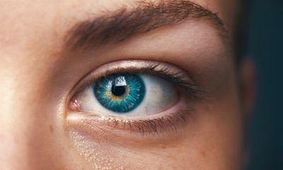 Tin tức đời sống ngày 22/3: Kỳ lạ người phụ nữ mắc chứng bệnh chảy máu mắt