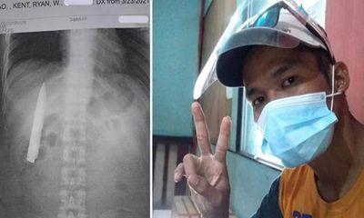Tin tức đời sống ngày 28/3: Lưỡi dao 10cm găm trong ngực