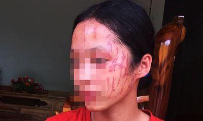 Nghệ An: Bênh em gái, nữ sinh lớp 8 bị bạn cào cấu nát mặt