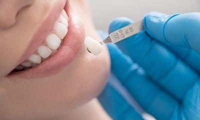 Tin tức đời sống ngày 5/4: Tốn 300 triệu đồng làm răng sứ, stress vì sút cân chóng mặt