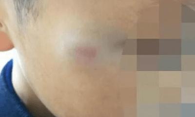 Bé 7 tuổi đi học bị đánh bầm tím, cô giáo bị đình chỉ nhưng khiến dân mạng tranh cãi
