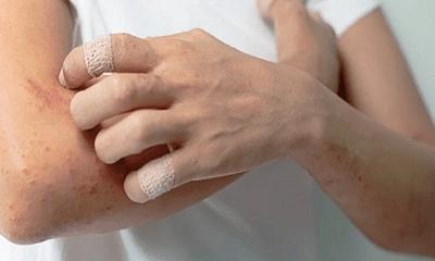 Xã hội - Nguyên nhân triệu chứng và chẩn đoán điều trị bệnh viêm đa cơ
