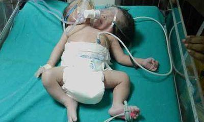 Đáng thương em bé Ấn Độ dị tật hai đầu chào đời