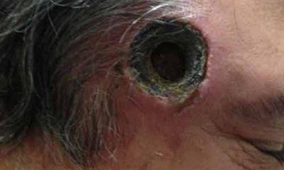 Thủng lỗ thái dương vì dùng thuốc lang băm