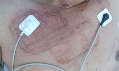 Khánh Hòa: Cứu sống bệnh nhân đã ngưng tim
