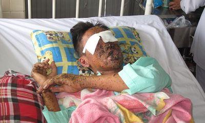Lò bánh tét phát nổ, nam thanh niên vỡ nát hai mắt