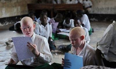 Tanzania: Người bạch tạng bị săn, lùng buôn bán để tìm vận may