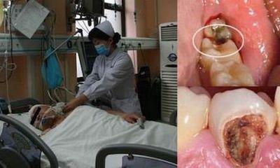 Một người đàn ông chết thảm vì... sâu răng