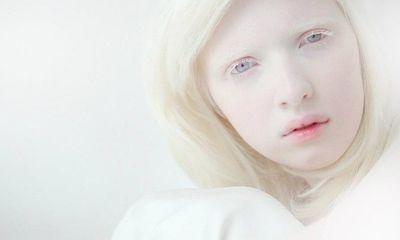 Kỳ lạ 9X có nước da trắng như Bạch Tuyết