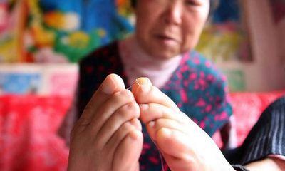 Cụ bà 70 tuổi dùng chân xâu kim và nghị lực vượt khó