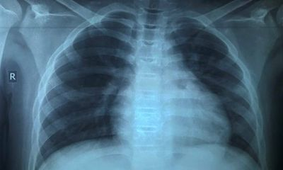 Điều trị thành công bé trai 13 tuổi mắc COVID-19 tổn thương phổi nặng