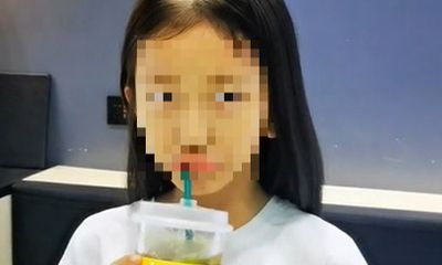 Bé gái bị rụng tóc tới hói đầu, bố mẹ giật mình khi biết nguyên nhân từ món quà vừa tặng con