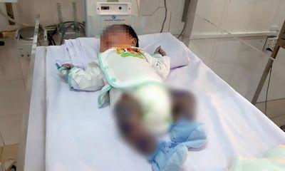 Tin tức đời sống ngày 10/6: Cứu sống bé trai 13 ngày tuổi bị thủy đậu toàn thân