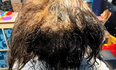 Chuyên gia phòng khám hết hồn vì mái tóc bết đầy chấy của cô gái, ra tay xử lý khiến ai nấy trầm trồ