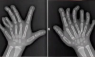 Tin tức đời sống ngày 17/6: Ngỡ ngàng bé 4 tuổi có đến 14 ngón tay, 13 ngón chân