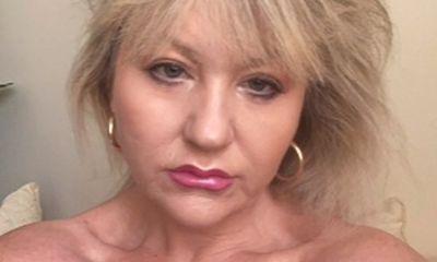 Tin tức đời sống ngày 15/7: Giật mình người phụ nữ dùng sản phẩm hóa học axit để căng da mặt