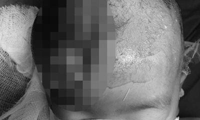 Tin tức đời sống ngày 10/8: Bé 3 tuổi bị rách da đầu do cổng sắt đè trúng