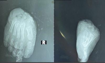 Tin tức đời sống ngày 1/9: Phẫu thuật 5 lần cứu bàn chân đứt lìa của bé trai 5 tuổi