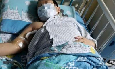 Bé trai 12 tuổi bị tai biến mạch máu não, bác sĩ cảnh báo ngay 6 thói quen xấu nhiều người mắc