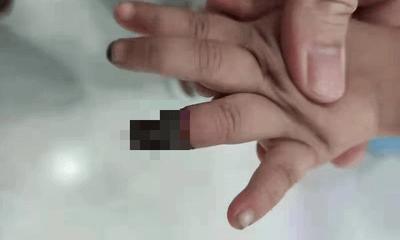 Cháu gái 3 tuổi bị đứt tay, bà dùng cách này cầm máu khiến bác sĩ buộc phải cắt cụt ngón đứa trẻ