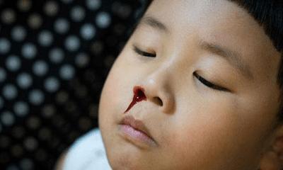Bé trai 5 tuổi chảy máu cam, bà nội cầm máu theo cách này khiến đứa trẻ phải nhập viện cấp cứu