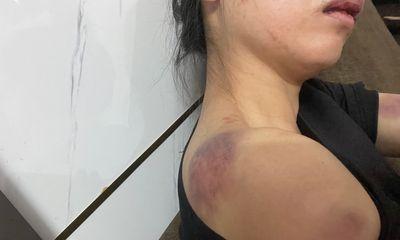 Yên Bái: Công an truy tìm người chồng tra tấn dã man vợ đến biến dạng