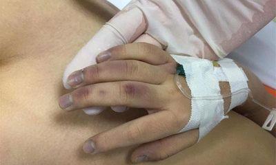 Vụ bé gái 6 tử vong nghi bị bạo hành ở Hà Nội: Bố có đánh con