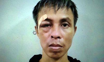 Vụ đâm nhiều nhát vào bệnh nhân cùng phòng ở Hà Nội: Nghi phạm khai gì?