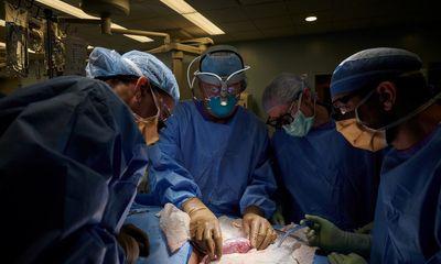 Mỹ phẫu thuật thành công ca ghép thận lợn đầu tiên cho người