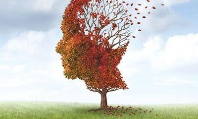 Dùng ngay sản phẩm thảo dược Kinh Vương Não Bộ nếu bị di chứng mất trí nhớ sau tai nạn