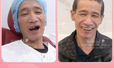 Nha khoa Singae dental - Hệ thống chăm sóc răng uy tín tại Việt Nam