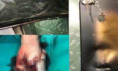 Điện thoại phát nổ trong lúc học online, học sinh lớp 5 tử vong thương tâm