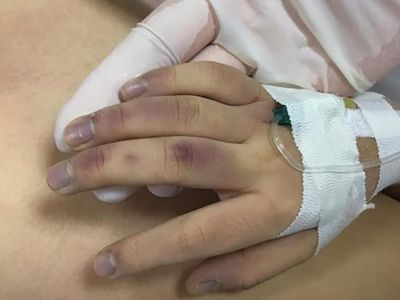 Vụ bé gái 6 tuổi tử vong ở Hà Nội: Nạn nhân bị bố đánh vì học chậm?
