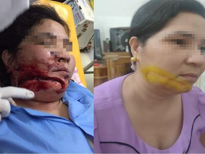 Hàm Yên, Tuyên Quang: Cần làm rõ hành vi kẻ chém người phụ nữ gây thương tích nghiêm trọng, nhưng vẫn nhởn nhơ ngoài vòng pháp luật