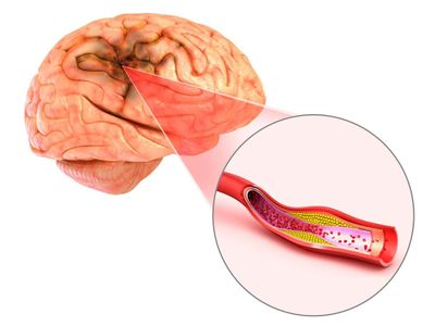 Dùng ngay sản phẩm thảo dược Kinh Vương Não Bộ khi gặp các di chứng sau nhồi máu não