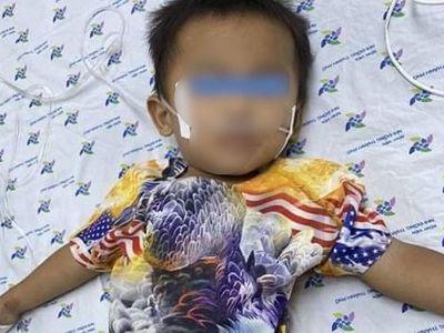 Bé trai 30 tháng tuổi nguy kịch do uống nhầm dung dịch tẩy mực in